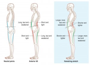 Workouts to Prevent Back Pain, Hamstring Injury & Anterior ...
