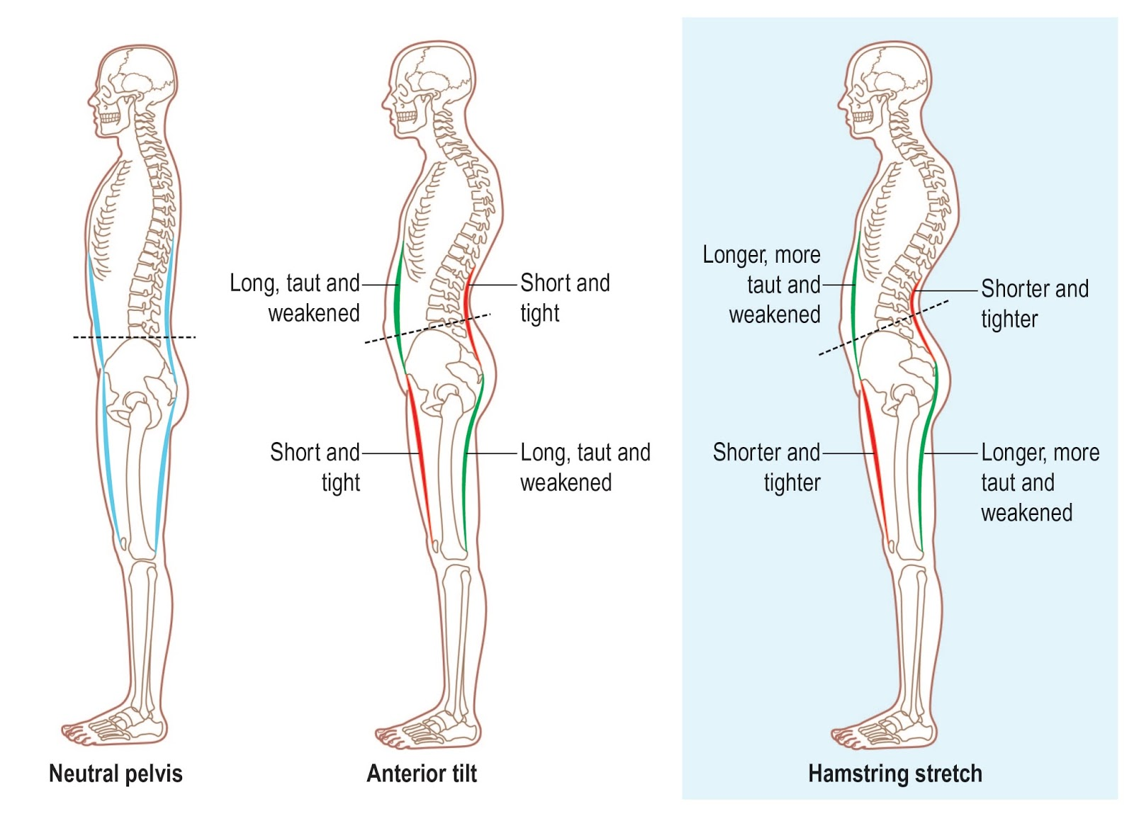 Workouts to Prevent Back Pain, Hamstring Injury & Anterior Pelvic Tilt